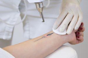 mnbrowlashacademy-Laser-Treatment